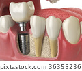 Anatomy healthy teeth and tooth dental implant 36358236