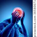 頭疼 頭痛 疼痛 36560071