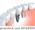 牙齿 植入 三维 36588989