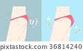 buttocks with plastic surgery concept 36814240