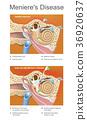 Meniere disease. Illustration.  36920637