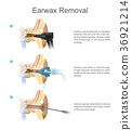 Earwax Removal. EARWAX s a common problem 36921214