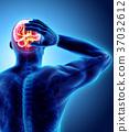 頭疼 頭痛 插圖 37032612