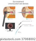 The Micro suction ear device.  37068002