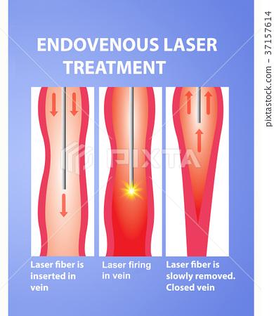 Vene varicoase laser recenzii fotografii