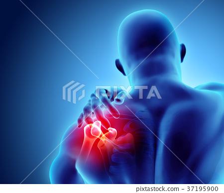 Shoulder painful skeleton x-ray, 3D illustration. 37195900