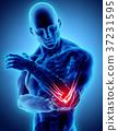 3d illustration of human elbow injury. 37231595