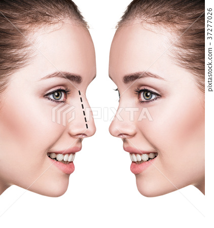 Female nose before and after cosmetic surgery 37277026
