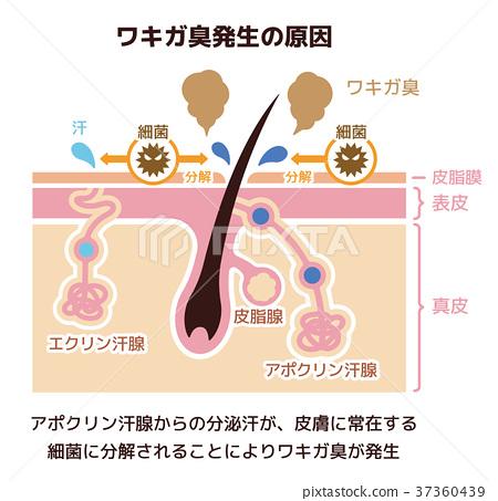 액취증 냄새 발생의 원인 일러스트 (암내 · 암내) 37360439