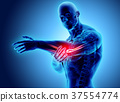 3d illustration of human elbow injury. 37554774