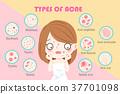 痘痘 女孩 少女 37701098