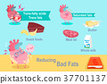heart with reducing bad fast 37701137