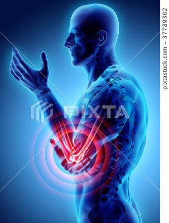 3d illustration of human elbow injury. 37789302