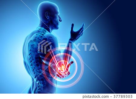 3d illustration of human elbow injury. 37789303