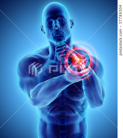 Wrist painful - skeleton x-ray. 37789304