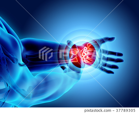 Wrist painful - skeleton x-ray. 37789305