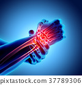 Wrist painful - skeleton x-ray. 37789306