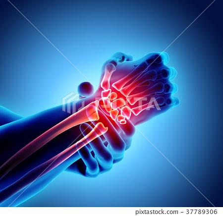 Wrist painful - skeleton x-ray. 37789306