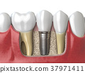 Anatomy of healthy teeth and tooth dental implant 37971411