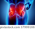 Hip painful skeleton x-ray, 3D illustration. 37999166