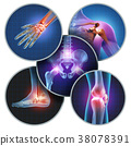 Human Painful Joints 38078391