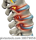 Spinal Stenosis 38079056