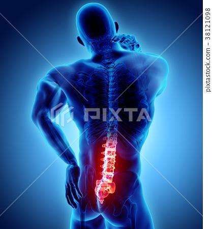 3D Illustration of sacral spine painful. 38121098
