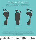 Foot deformation. Valgus and varus infographic 38258849