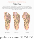 Foot deformation. Bunion infographic 38258851