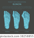 Foot deformation. Bunion infographic 38258855