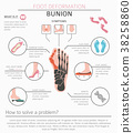 Foot deformation. Bunion infographic 38258860