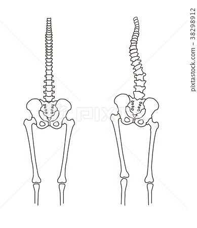 Body strain Skeleton comparison 38298912
