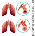 Diagram showing lungs with disease 38502940