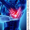 3d illustration of human elbow injury. 38540117