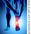 脚踝 疼痛 脚 38737896