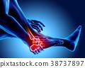 脚踝 疼痛 脚 38737897