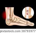 Human foot with tear tendon 38793977