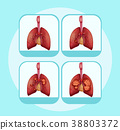 Diagram showing different stages of lung cancer 38803372