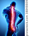 背痛 脊髓 x光 38846609