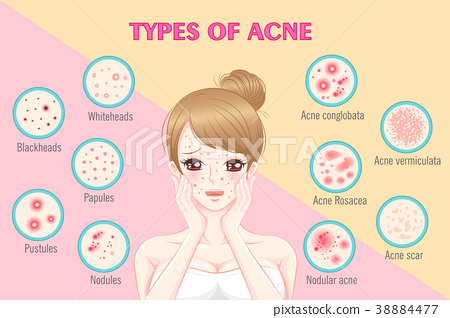 woman with types of ance 38884477