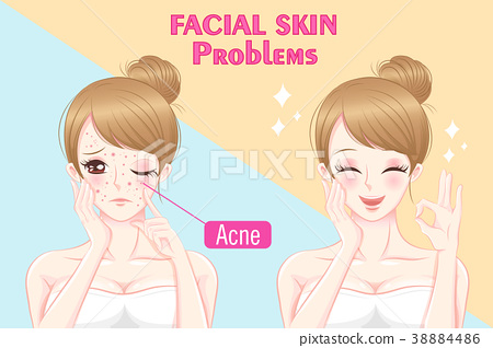 woman with skin problems 38884486