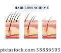 Hair Loss Scheme 38886593