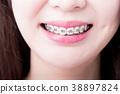 支架 牙套 支柱 38897824
