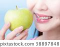苹果 支架 牙套 38897848