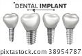 implant, tooth, teeth 38954787