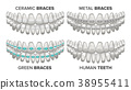 Braces Set Vector. Different Types. Human Jaw 38955411