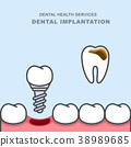 Dental implant instead of carious tooth  38989685
