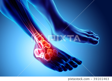 Ankle painful - skeleton x-ray. 39101463