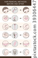 Infographic of hair removal methods 39306447