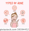 Types of acne with woman cartoon vector on pink 39394452
